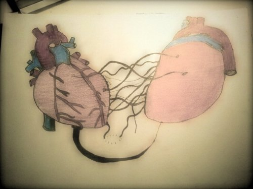 Hjertetråder
